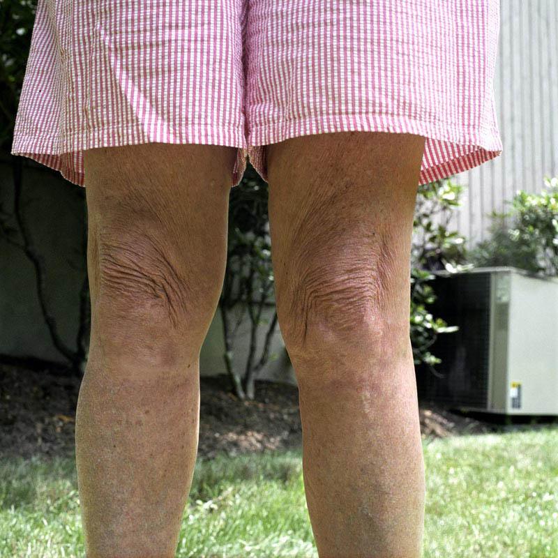 Moms_Legs